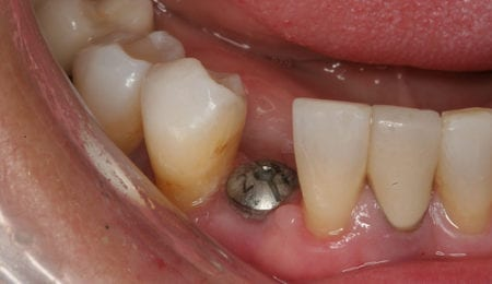 The Different Aspects of Dental Implants