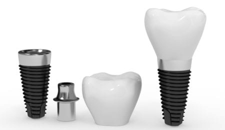 Taking care of the dental implants
