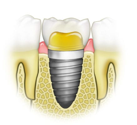 Are dental implants reliable?