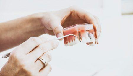 Technological Advantages of Dental Implants