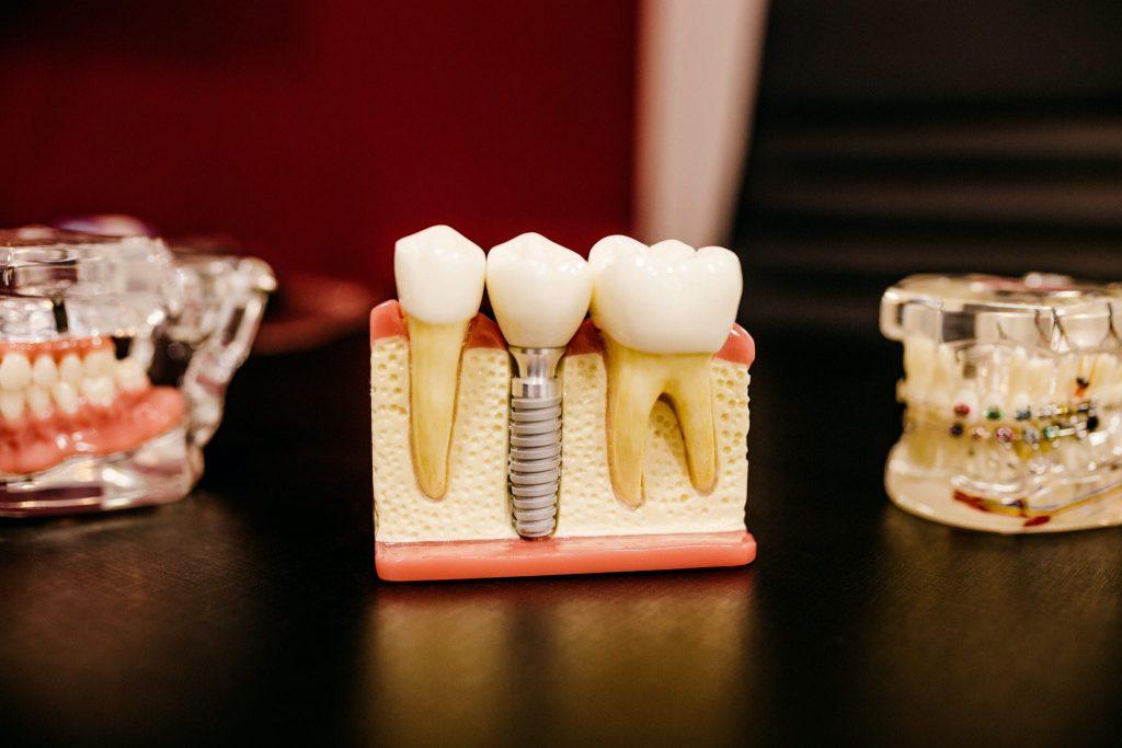 Wisdom Teeth: Should I Have My Wisdom Teeth Removed?