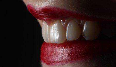 Natural Ways to Remove Tartar and Gingivitis Treatment